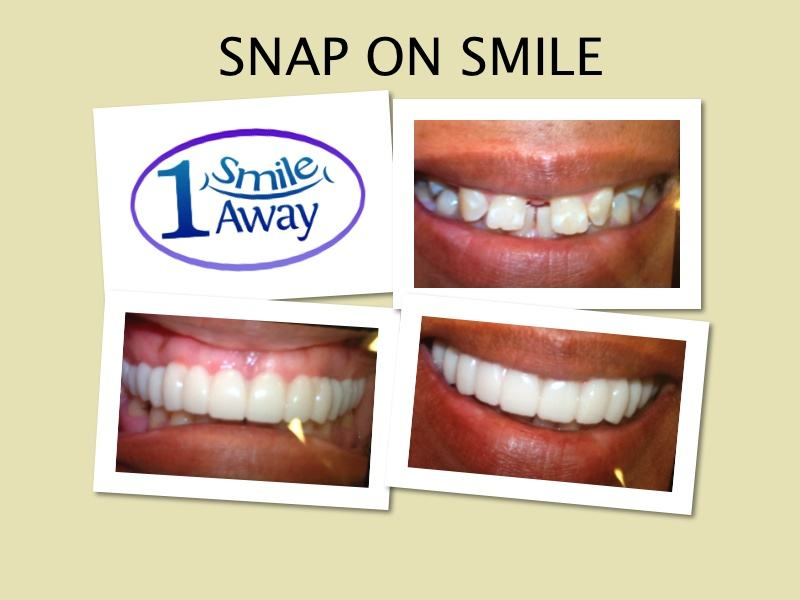 Example of Snap-on Smile from One Smile Away